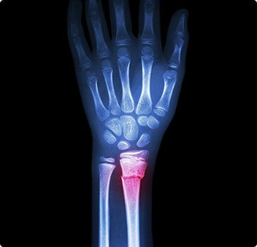 Orthopedic Injuries - Basin Orthopedic Surgical Specialists