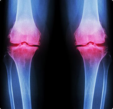Basin Orthopedic Surgical Specialists - sports medicine - joint replacement surgeons